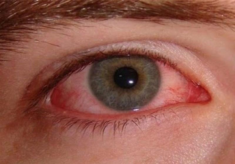 راهکارهایی برای مراقبت از چشم در برابر ویروس کرونا