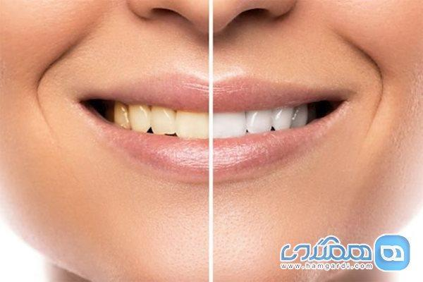 عوارض جرم گیری دندان