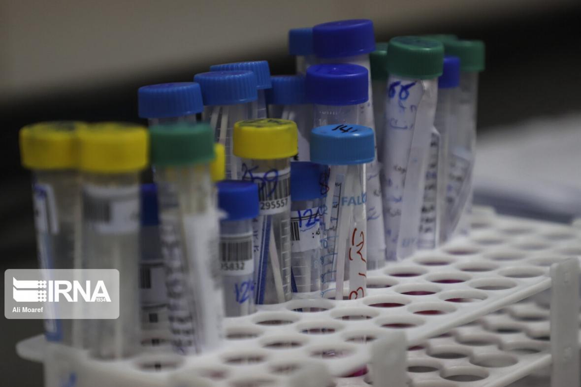خبرنگاران دانشگاه علوم پزشکی اهواز در مورد مفقودی نمونه های کرونا بیانیه داد