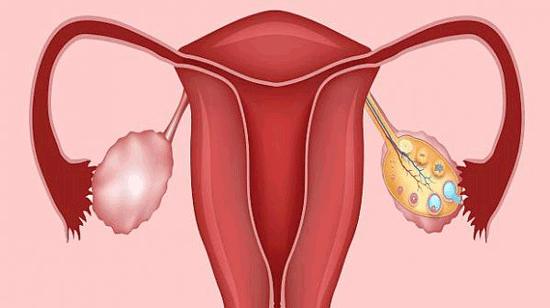 تنبلی تخمدان، علایم و راه های مقابله