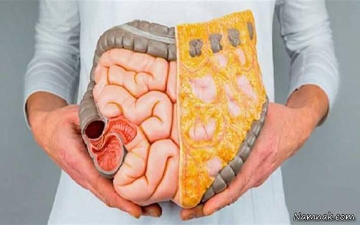 علائم، دلایل و راه های درمان یبوست علائم یبوست چیست ؟